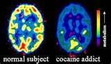 Pictures of Cocaine Addiction Brain