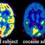 Cocaine Addict Reading Images